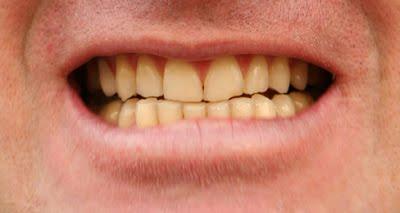 Seratu Com Cara Mencegah Gigi Agar Tidak Berwarna Kuning