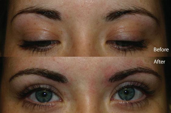 Cosmetic tattoo eyebrows for Cosmetic eyebrow tattoo
