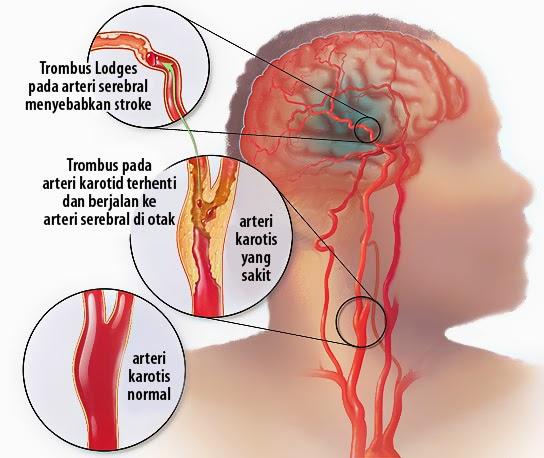 cara-menghindari-stroke-makanan-pantangan-sembuhkan-dengan-produk-nasa