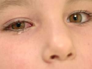 Sakit Mata: Gejala, Penyebab, dan Cara Mengobatinya