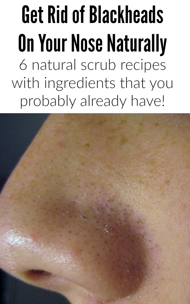 How To Get Rid Of Blackheads On Nose Naturally