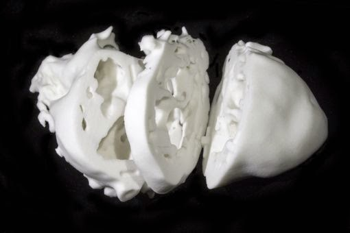 Surgeons Use 3-D Printed Model Of Heart To Treat Patients With Disorders