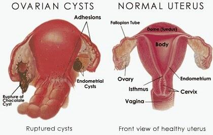 tanda-tanda cyst
