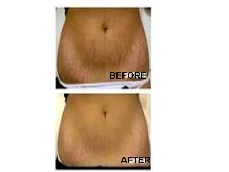 How to Get Rid of Stretch Marks on Arms Get Rid of Stretch Marks