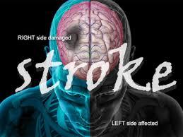Cara mengatasi stroke