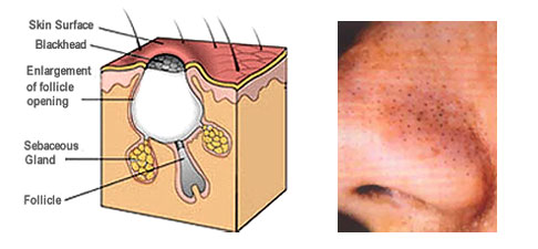 Causes of Black Head
