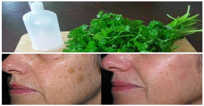 La pigmentación como arreglar por las cremas