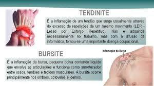 Tendinite, Bursite, Inflamação e Dores nos Ombros - Clínica de Massagem Terapêutica, Massoterapia e Quiropraxia em São José SC (grande Florianopólis)