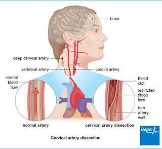 Bupa Image of Carotid Artery Dissection