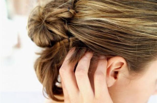 Solusi Cepat Mengatasi Kulit Kepala Kering Gatal Dan Bersisik