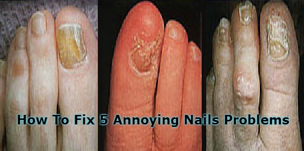 How To Fix 5 Annoying Nails Problems