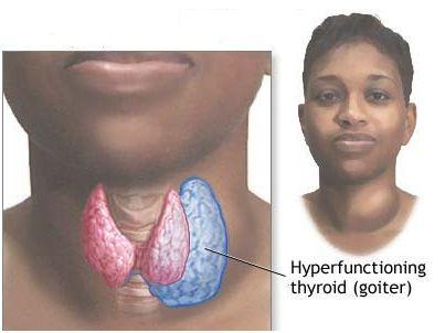 Gout And Hypothyroidism