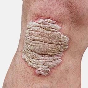 Atopichesky la dermatitis y la eccema