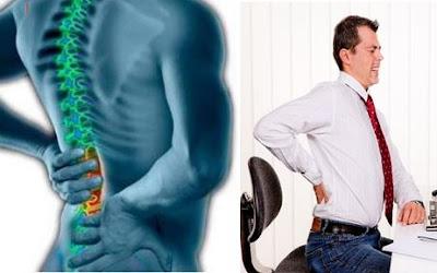 Gb. Obat Alami Penghilang Rasa Sakit Punggung Dan Pinggang Yang Ampuh
