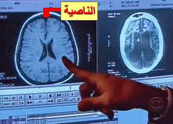 otak jahat manusia