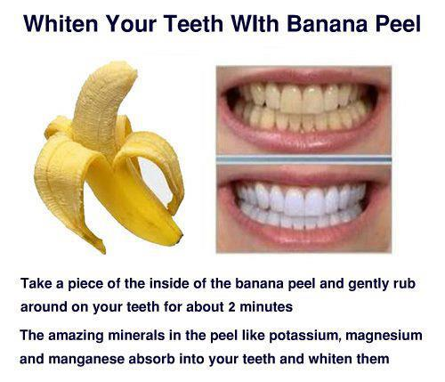 Coconut oil and teeth
