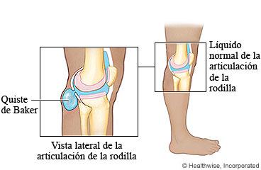 Quiste sinovial o gangli n taringa - Dolor en la parte interior de la rodilla ...