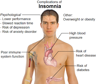 Akibat Dampak Kurang Tidur Bagi Kesehatan