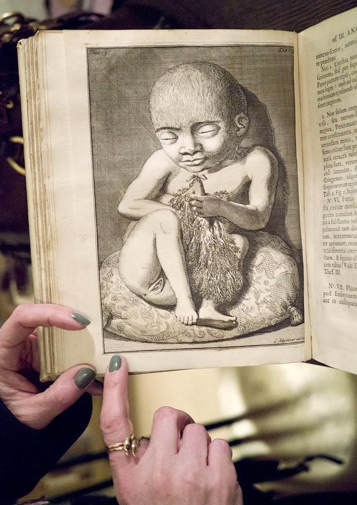 Morbid Anatomy: Please Welcome Frederik Ruysch\'s 18th Century ...