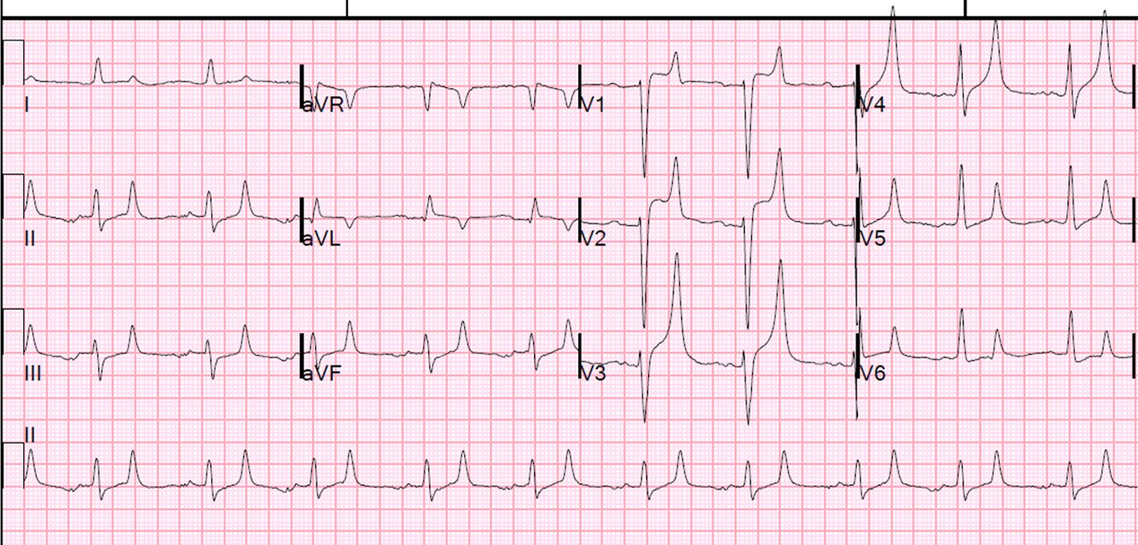 dr smiths ecg blog hyperkalemia and st segment