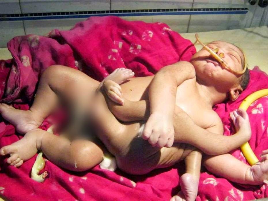 Meet God Baby : The Boy Born With Eight Limbs