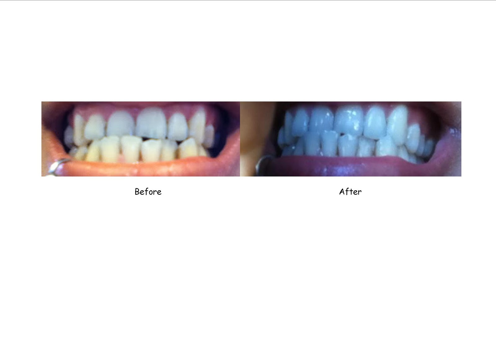Crest 3d white strips before and after pictures