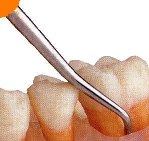 Cara mebersihkan karang gigi