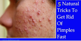 How To Get Rid Of A Pimple Fast - 5 Natural Tricks To Get Rid Of Pimples Fast