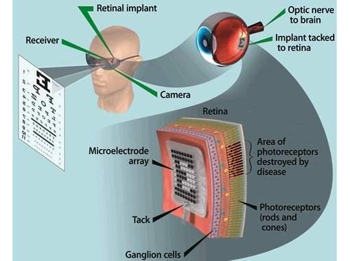 Olho biônico é aprovado para uso em pacientes