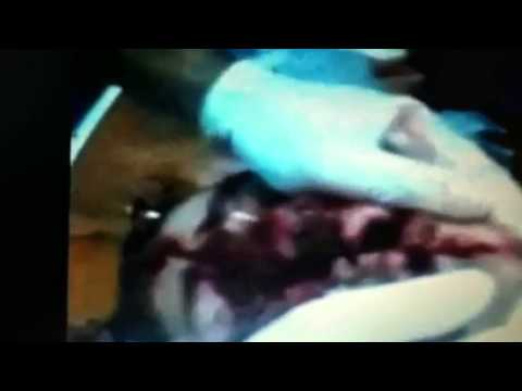 Guy splits face open