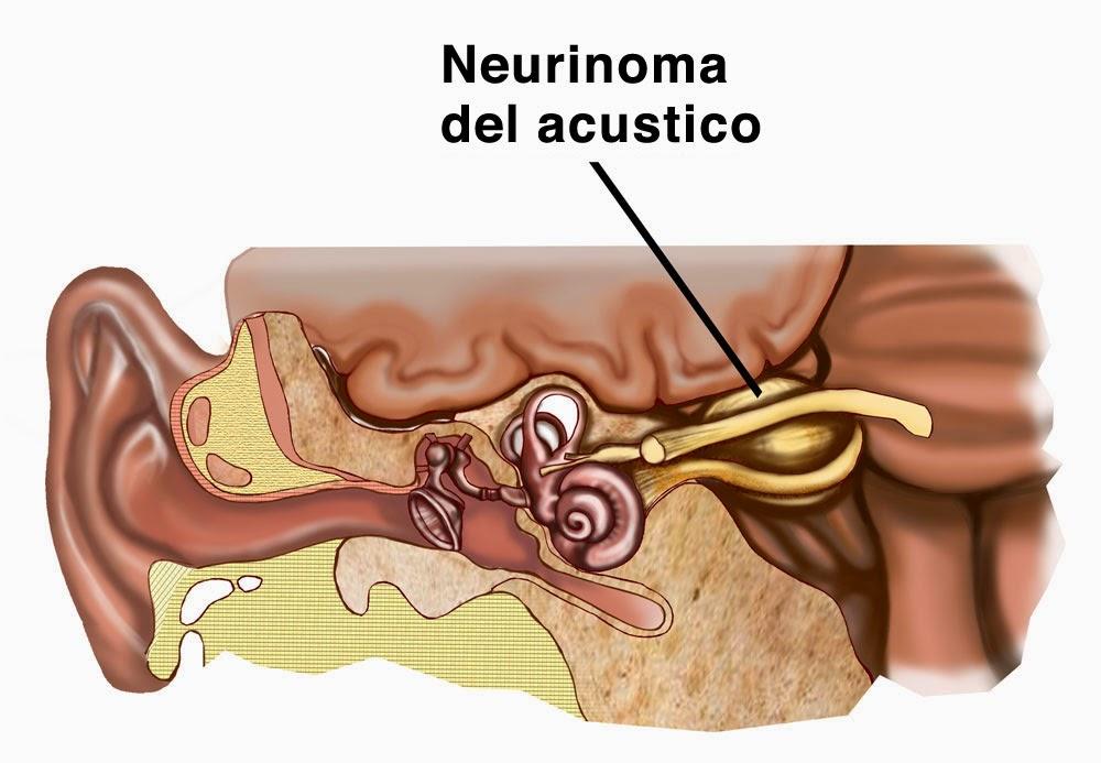 etiologia acufeno: