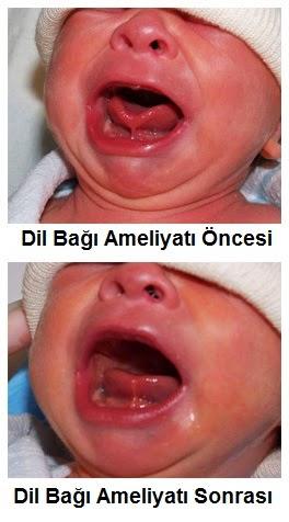 dil bağı nedir, lingual frenulum nedir, dil bağının görevi