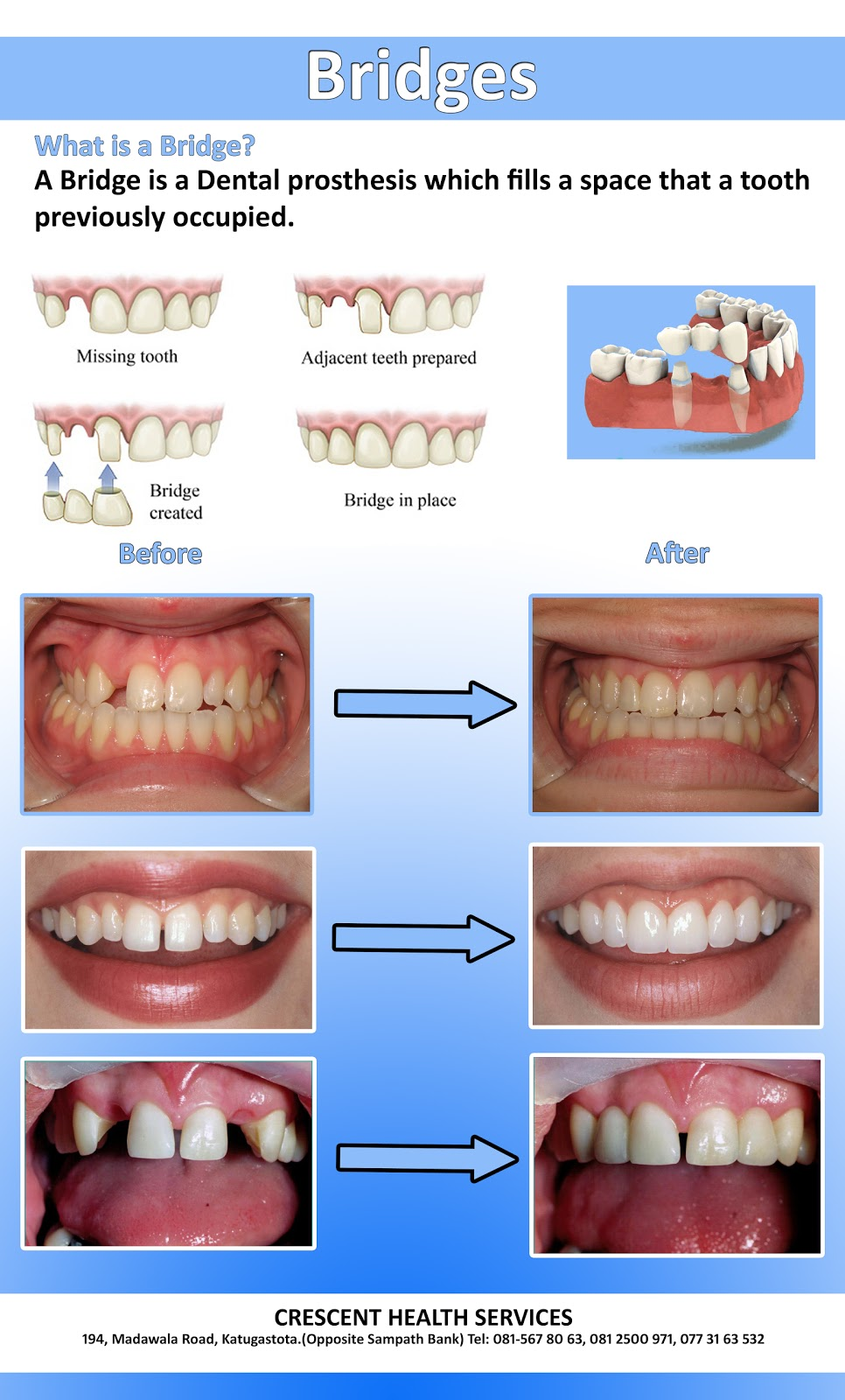 Bridge is a dental prosthesis which fills a space that a tooth