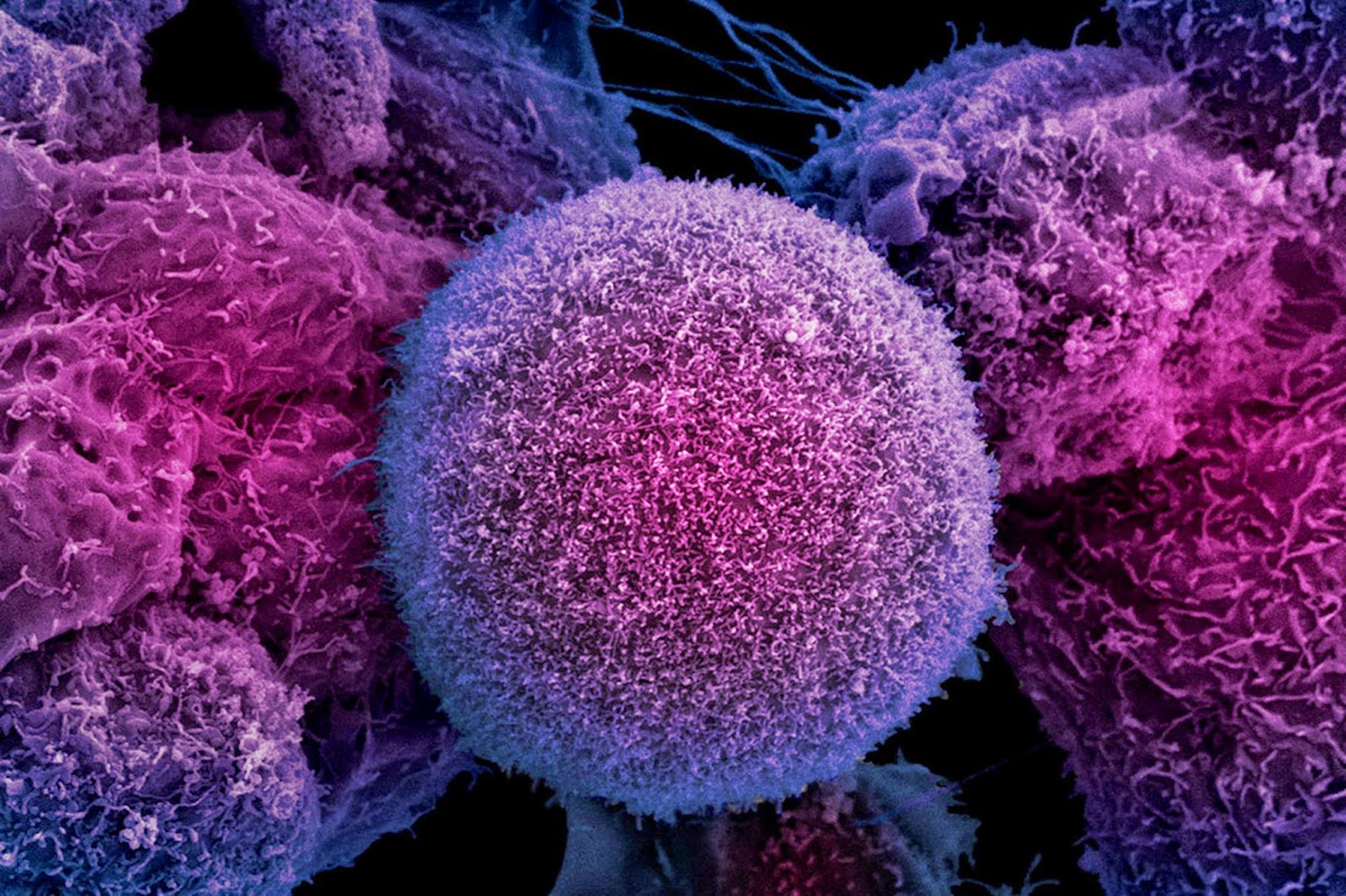Scientists believe a new treatment, shown to be effective in mice, could halt the growth of tumours in patients with prostate cancer.
