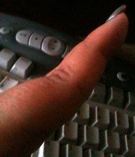 Ana Tirolese's finger