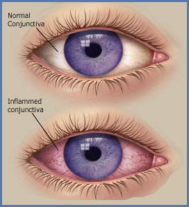 Nursing Diagnosis for Conjunctivitis