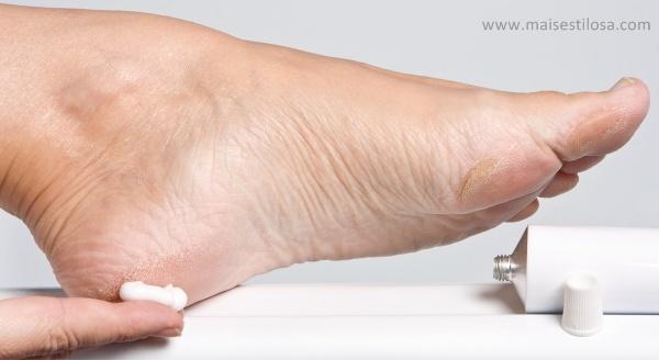 receita caseira para rachadura nos pés
