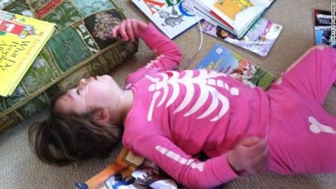 Cara Mengobati Step Atau Kejang Pada Anak Tanpa Efek Samping