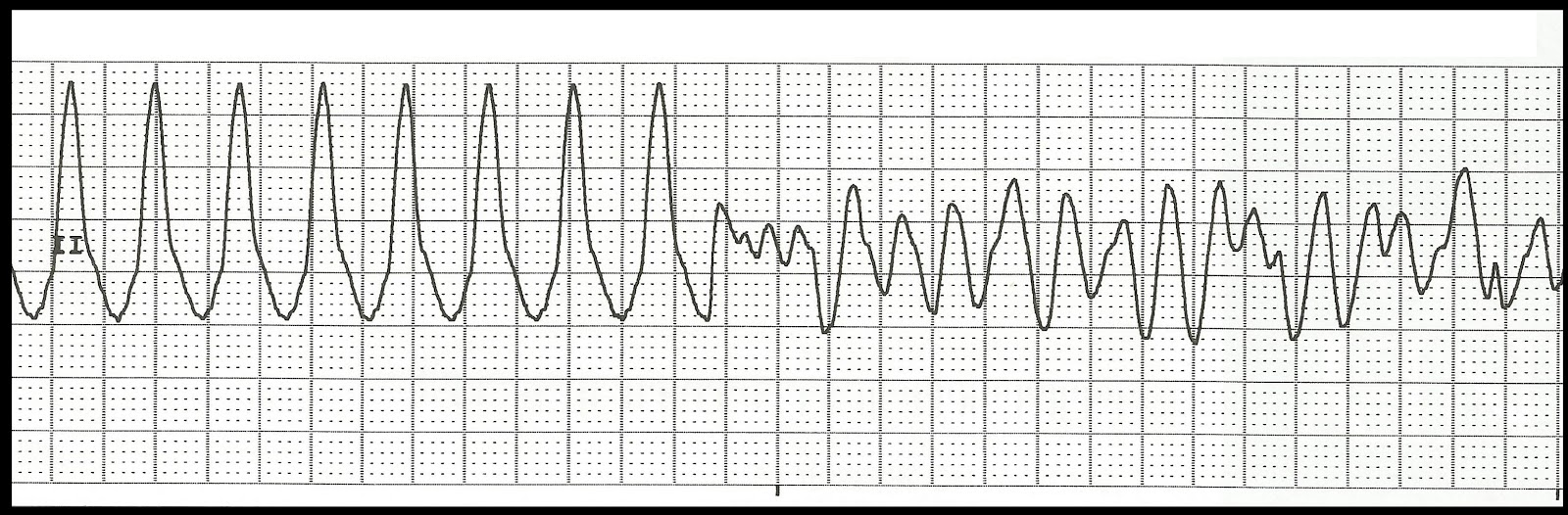 Telemetry Technician Course: Practice EKG Strips (class 8)