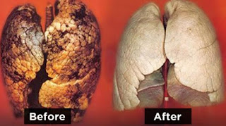 10 Cara Terampuh Bersihkan Paru-paru