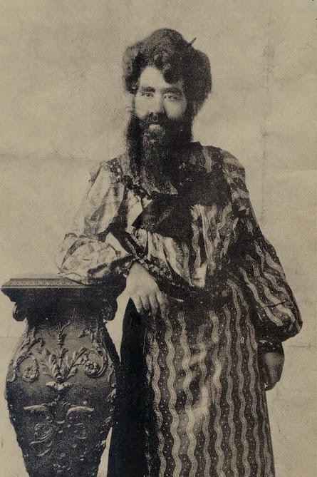 1924 : Kalkaska's Bearded Lady Dies