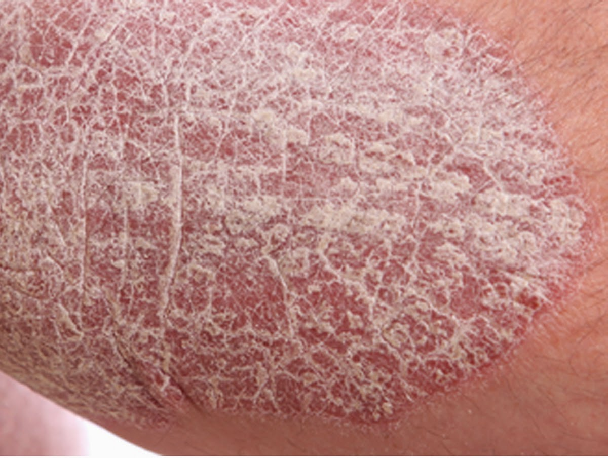 Scaly Crusted Spots on the Skin - Actinic Keratosis by ...