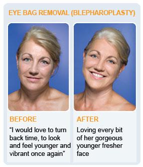 Bag Gloves Images: Eye Bag Removal