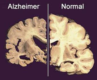 uburwayi bwo kwibagirwa 'Alzheimer'