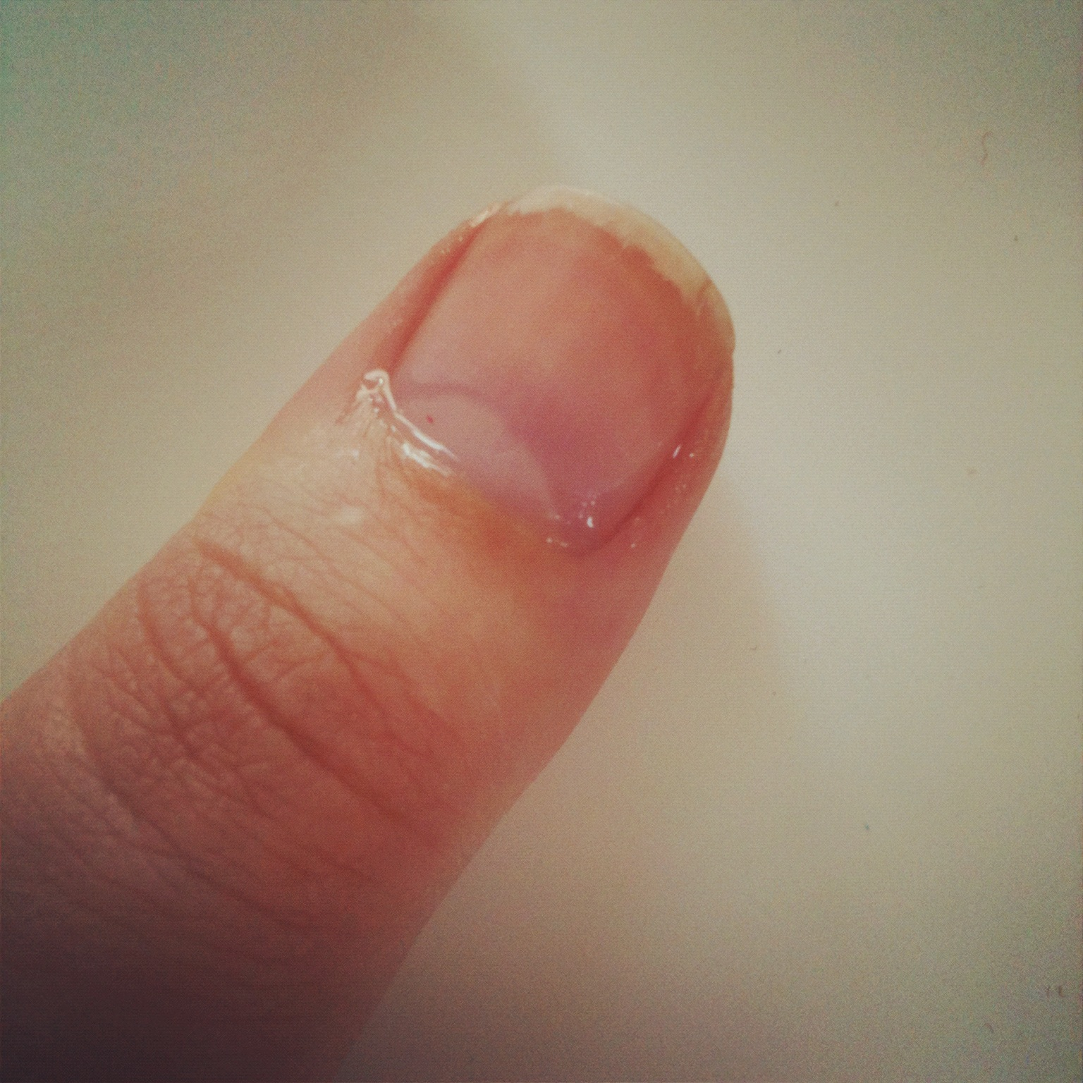 how to get healthy fingernails