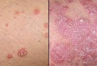 http://herbalalamiteripanglaut.blogspot.com/2015/07/pengobatan-alami-penyakit-kulit.html