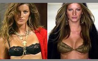 Gisele Bündchen está irritadíssima com o vazamento das cirurgias plásticas que fez. Segundo a imprensa internacional, a modelo brasileira mexeu nos seios e nos olhos.