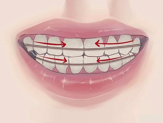 redresser les dents sans bretelles soins dentaires. Black Bedroom Furniture Sets. Home Design Ideas
