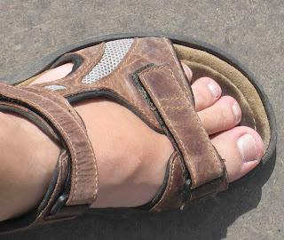 ses pieds dévorés par les moustiques dans des Birkenstock