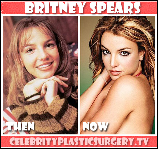 Celebrity Plastic Surgery: Britney Spears Says No For Now ...
